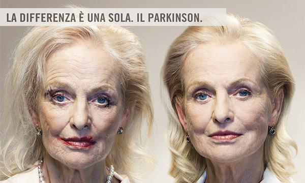 Aaa gemelli cercansi per poter curare il parkinson - Gemelli monozigoti diversi ...