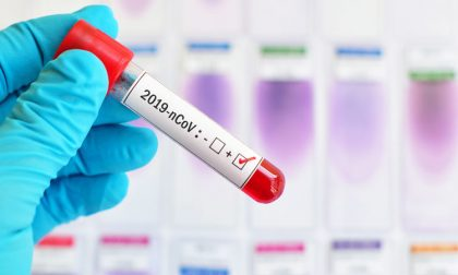 Coronavirus in Lombardia, ancora 5 casi nel Comasco