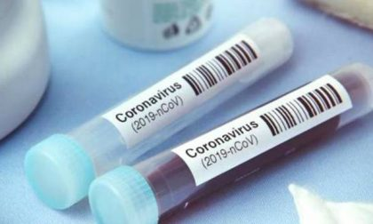 Coronavirus in Lombardia: 5.849 positivi, nel Comasco +396